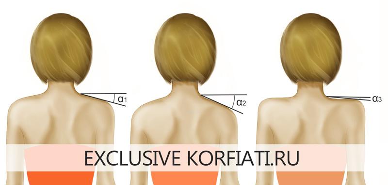Типы плеч: нормальные, низкие и высокие